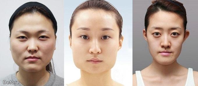 Đối tượng thực hiện phẫu thuật gọt mặt Hàn Quốc