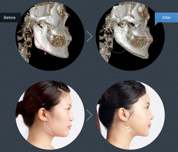 Có nên phẫu thuật thẩm mỹ khuôn mặt? 4