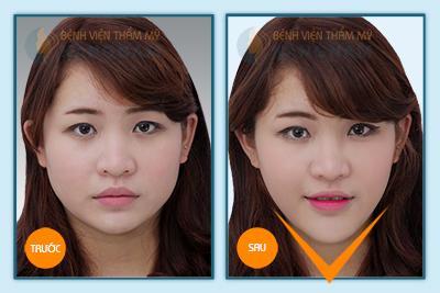 Hình ảnh trước & sau gọt mặt V-line 3D 3