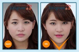 Kết quả gọt cằm 3D Hàn Quốc 1