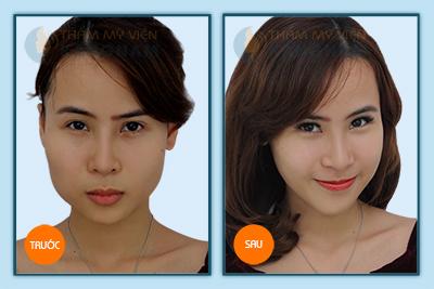 Thẩm mỹ khuôn mặt V-line và những điều bạn nên biết