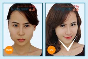 Kết quả gọt cằm 3D Hàn Quốc 3