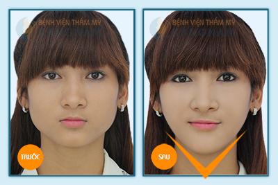 Hình ảnh trước & sau gọt mặt V-line 3D 5