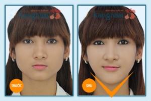 Kết quả gọt cằm 3D Hàn Quốc 2