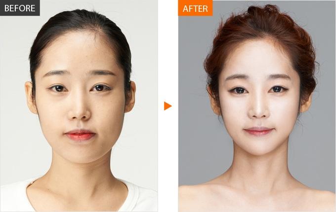 Kết quả sau khi phẫu thuật gọt mặt