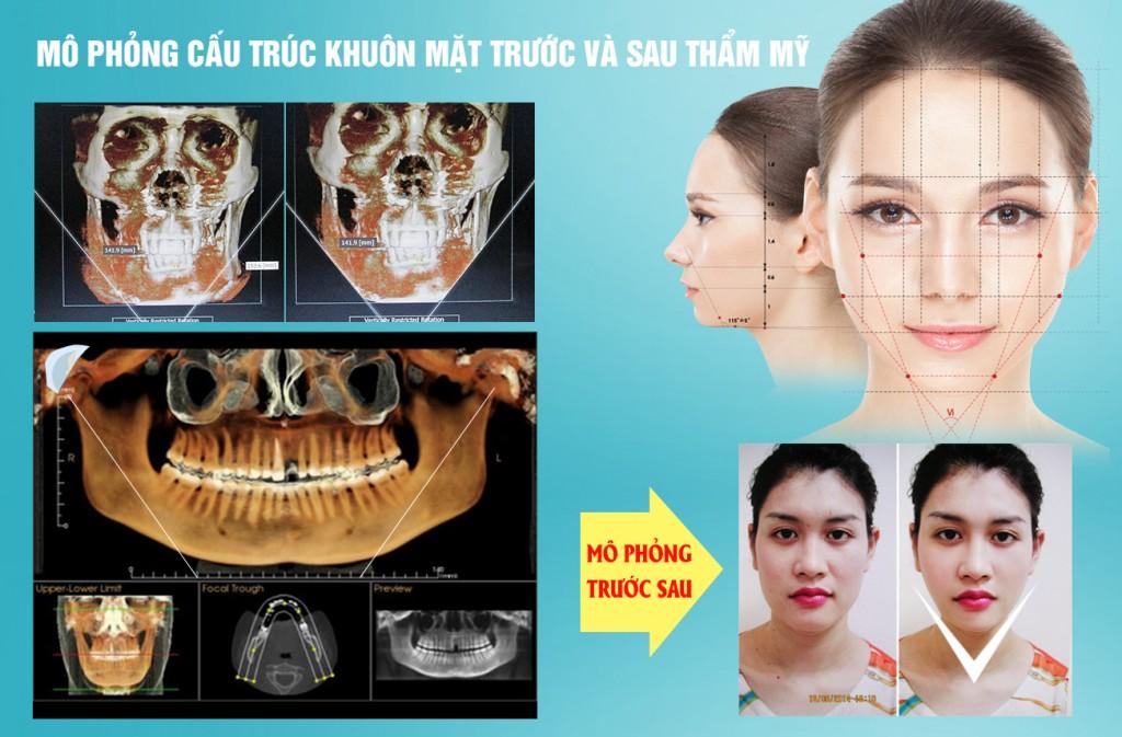 Gọt mặt V line 3D tạo mặt đẹp chuẩn Hàn, CAM KẾT an toàn 2