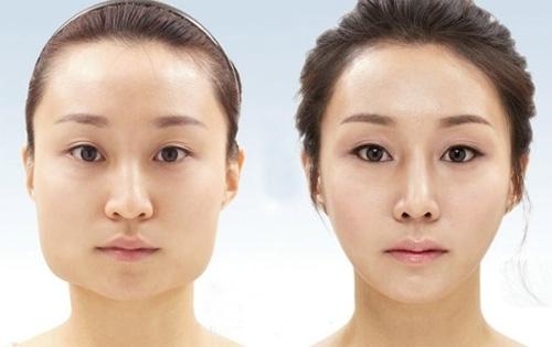 Phẫu thuật gọt mặt Hàn quốc