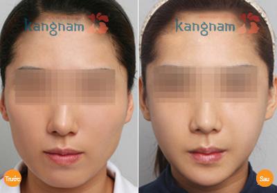 Kết quả Phẫu thuật hạ gò má công nghệ Hàn Quốc 1