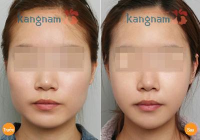 Kết quả Phẫu thuật hạ gò má công nghệ Hàn Quốc 2