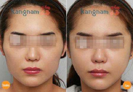 Kết quả Phẫu thuật hạ gò má công nghệ Hàn Quốc 3