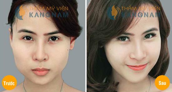 tham-my-khuon-mat-v-line
