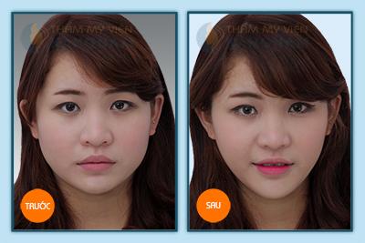 Hinh-anh-tham-my-khuon-mat-v-line-3D