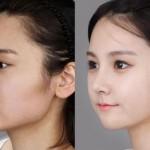 Cách chỉnh hàm hô, hàm vẩu hiệu quả bằng CN Hàn Quốc