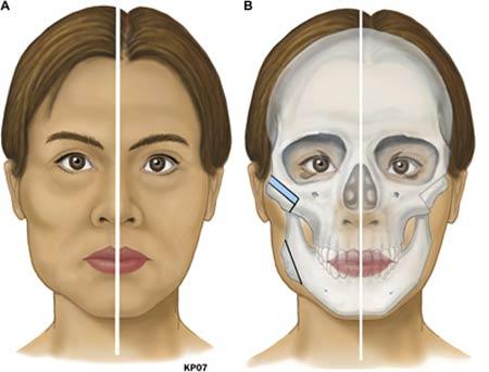 Kỹ thuật phẫu thuật hạ gò má