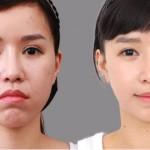 Chi phí chỉnh hàm hô móm tại Thẩm mỹ viện Kangnam?