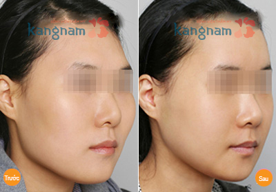 Phẫu thuật gọt gò má tại kangnam