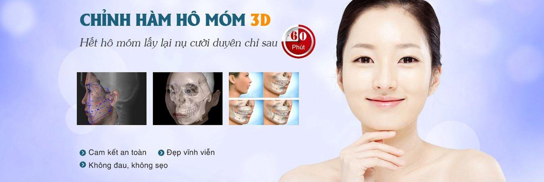 Chỉnh hàm hô móm công nghệ 3D