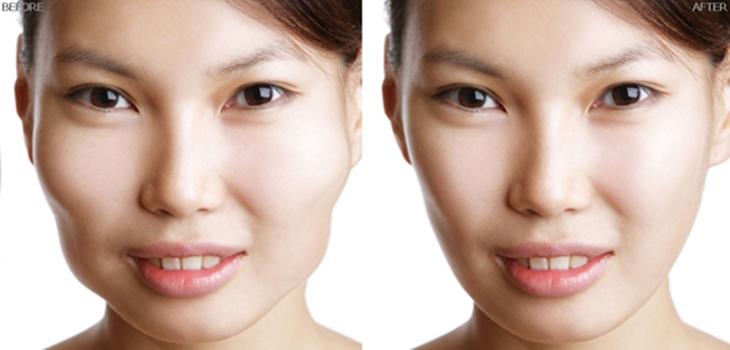 Có nên phẫu thuật hạ gò má tại Bệnh viện Thẩm mỹ Kangnam?6