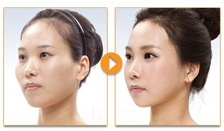 Có nên phẫu thuật hạ gò má tại Bệnh viện Thẩm mỹ Kangnam? 4