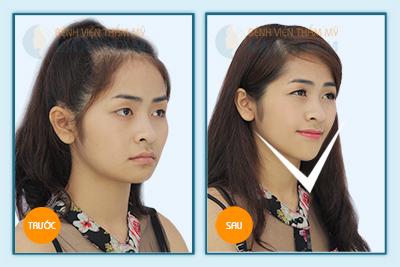 Hình ảnh trước & sau gọt mặt V-line 3D