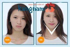 Kết quả gọt cằm 3D Hàn Quốc 4