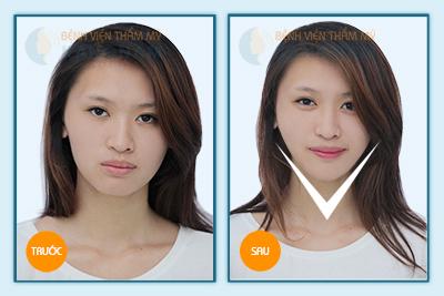 Hình ảnh trước & sau gọt mặt V-line 3D 2