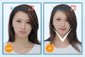 Kết quả phẫu thuật gọt mặt Kangnam's Perfect Vline 1
