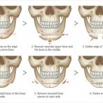 Những ai có thể phẫu thuật gọt hàm?