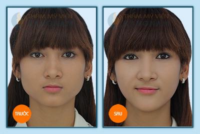 got-mat-kangnams-perfect-vline-3d-dinh-cao-cua-tham-my-guong-mat11