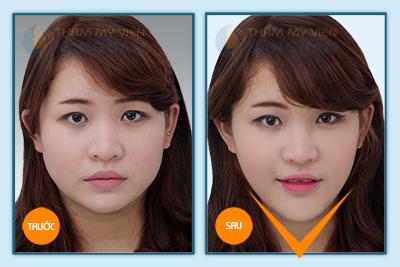 got-mat-kangnams-perfect-vline-3d-dinh-cao-cua-tham-my-guong-mat13