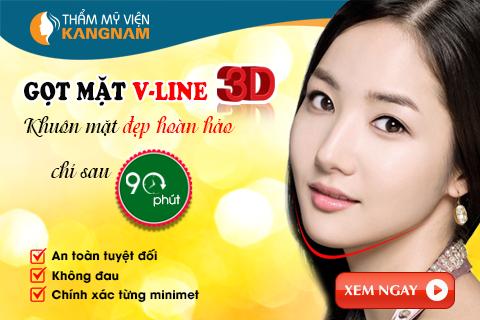 got mat vline 3D