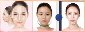 Tìm hiểu thêm về công nghệ làm đẹp gọt mặt v line Hàn Quốc