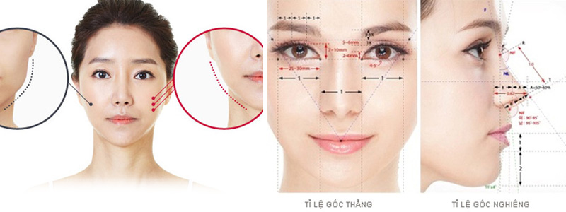 phẫu thuật gọt hàm 2