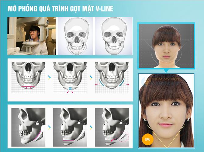 Gọt mặt hết bao nhiêu tiền để có khuôn mặt V line đẹp?