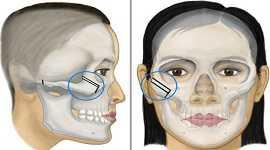 Phẫu thuật hạ gò má có đau không? – Chuyên gia thẩm mỹ tư vấn