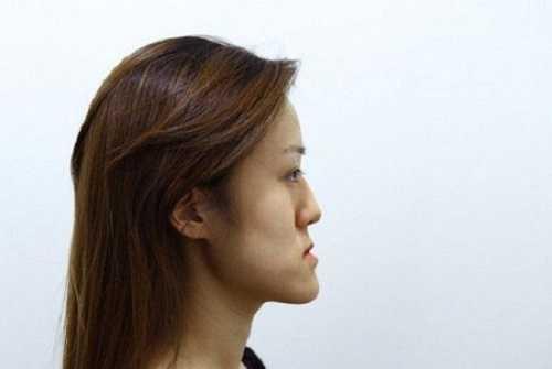 Gương mặt lưỡi cày là gì