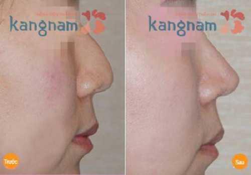 Nâng mũi không phẫu thuật 3