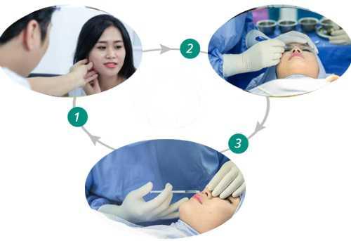 Nâng mũi không phẫu thuật 2