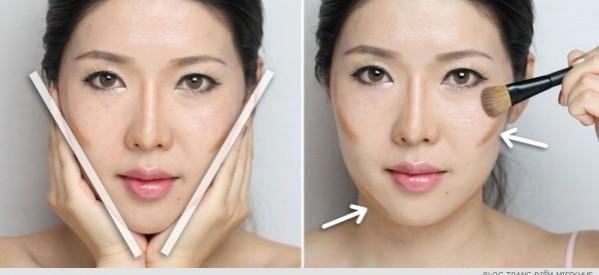 gọt mặt không phẫu thuật 6