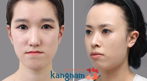 Phẫu thuật chỉnh hàm móm ở đâu tốt nhất Việt Nam?