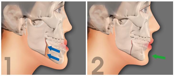 Phẫu thuật chỉnh hàm móm ở đâu tốt nhất? 2
