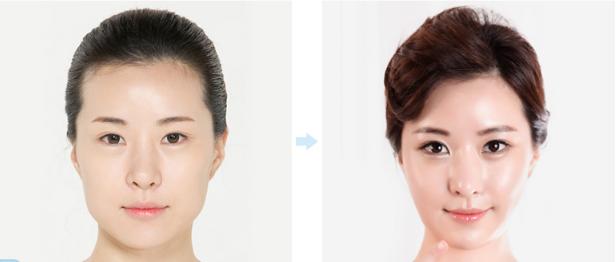 Bật mí phương pháp phẫu thuật chỉnh hình cằm toàn diện 9