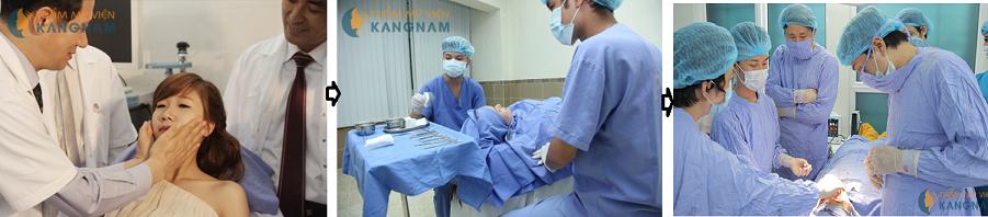 Bật mí phương pháp phẫu thuật chỉnh hình cằm toàn diện 8