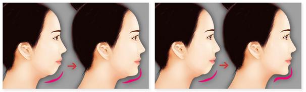 Bật mí phương pháp phẫu thuật chỉnh hình cằm toàn diện 7
