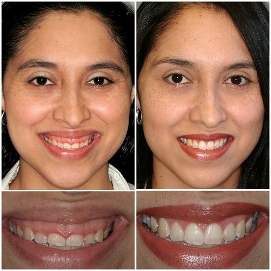 Phẫu thuật chữa cười hở lợi có đau không 2