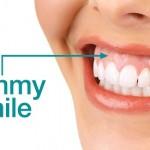 Phẫu thuật chữa cười hở lợi có đau không?