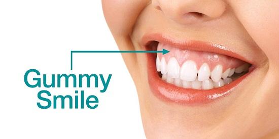 Phẫu thuật chữa cười hở lợi có đau không