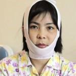Gọt mặt có bị sưng không – chuyên gia giải đáp