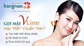 Phẫu thuật gọt mặt V Line 3D tại BVTM Kangnam tạo khuôn mặt V line thanh tú