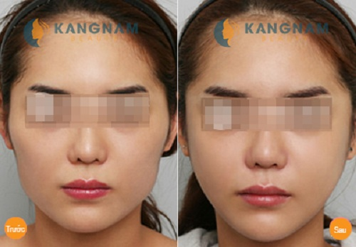 Phẫu thuật gọt xương hàm giá bao nhiêu tiền tại Kangnam